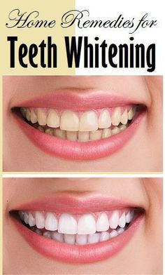 When it comes to whitening your teeth, you definitely need to find the best method for whitening teeth. There are a lot of teeth whitening products Teeth Whitening Remedies, Natural Teeth Whitening, Whitening Kit, Warts On Hands, Warts On Face, Make Up Tutorials, Make Teeth Whiter, What Causes Warts, Get Rid Of Warts