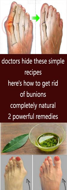 Calendula Benefits & Uses for Skin, Insect Bites, Anti-Cancer & More - Orthern Calendula Benefits, Matcha Benefits, Coconut Health Benefits, Herbal Remedies, Health Remedies, Natural Remedies, Snacks Diy, Bunion Remedies, Get Rid Of Bunions