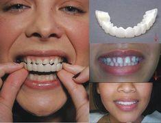 Amazing Remedies rosy lips and pretty white teeth - Teeth Makeover, Smile Makeover, Veneers Teeth, Dental Veneers, Misaligned Teeth, Rosy Lips, Perfect Smile, Perfect Teeth, Beautiful Smile