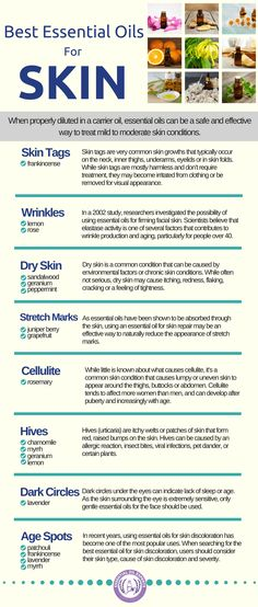 Top essential oils for dry skin and moisturizing essential oils for wrinkles.