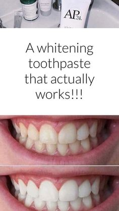 No harsh peroxide toothpaste! All you do is brush! Ap 24 Whitening Toothpaste, Whitening Fluoride Toothpaste, Galvanic Spa, Healthy Skin Care, Cavities, Anti Aging Skin Care, Deodorant, Nu Skin, Skin Products