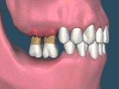 perda de dentes causando extrusão dos dentes antagonistas e reabsorção óssea - YouTube