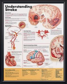 Understanding Stroke anatomy poster explains and illustrates stroke, including the two main types: ischemic and hemorrhagic. Cardiovascular for doctors and nurses.