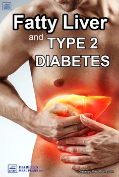 Fatty Liver and Diabetes: All You Need To Know Health & Fitness – Grandcrafter – DIY Christmas Ideas ♥ Homes Decoration Ideas Beat Diabetes, Diabetes Meds, Gestational Diabetes, Health Benefits, Health Tips, Calendula Benefits, Cure Diabetes Naturally, Fatty Liver, Diabetes Treatment