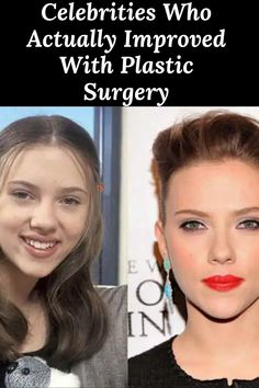 #Celebrities #Who #Actually #Improved #With #Plastic #Surgery Plastic Surgery, Celebrity Gossip, Celebrities, Unique, Amazing, Funny, Celebs, Ha Ha