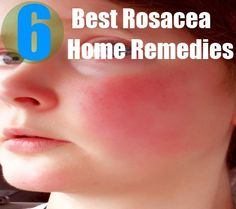 Rosacea is a skin disorder that leads to reddening of the face skin. The affected area of the face swells due to pus formation. It ...