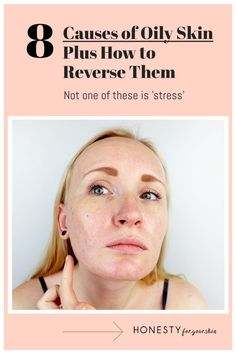 Why does my face product so much oil? These 8 causes of oily skin are scientifically proven. Reverse them and your skin can be balanced. Find out how in this blog. #honestyforyourskin #oilyskincare Skincare Blog, Best Skincare Products, Oily Skin Care, Acne Prone Skin, All Natural Skin Care, Natural Beauty, Acne Help, Natural Acne Remedies, Acne Solutions