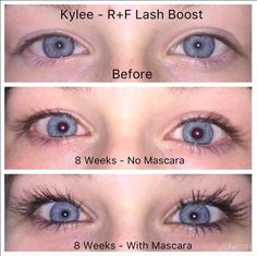 13 year old Kylie Thick Lashes, Long Lashes, Skin Tightening, Skin Firming, Lash Boost Serum, Crows Feet, 13 Year Olds, Rodan And Fields, Skin Care Regimen