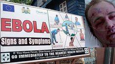Belakangan, virus Ebola menjadi topik hangat dalam dunia kesehatan. Setelah angka penyebaran virus dan kematian semakin meningkat di Afrika, akhirnya CDC atau Center for Disease Control and Prevention mengeluarkan aturan baru terkait pencegahan virus Ebola. Bagaimana cara mengatasinya ya? on-msn.com/10ekdpx