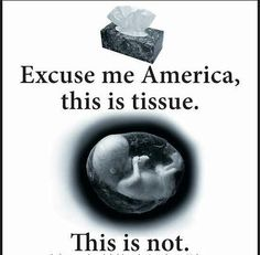 Go back to health class America. That is a life, not a blob of tissue or clump of cells