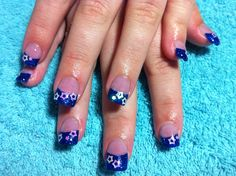 Acrylic nails with blue glitter top and white AB hearts.