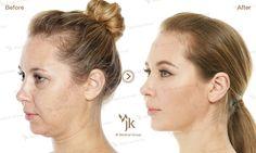 Korea plastic surgery _anti-aging before&after _JK plastic surgery