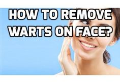 Are Face Warts Really Hurting Your Self-Esteem Absolutely? #FaceWartsCure ,