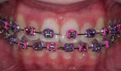 In today's modern world, the purple braces have become a most fashion statement among the kids to wear. These braces are available in so many colors, but the purple braces are most favorite choice … Dental Braces, Teeth Braces, Pink Braces, Braces Tips, Braces Bands, Braces Retainer, Rose Mauve, Purple Rose, Cute Braces Colors