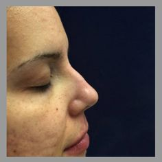 Nose Reshaping with Juvederm. *Note: this is the Before picture.  I'll be posting After shortly.  #anusha #skinspecifics #restylane #restylanelyft #perlane #juvederm #juvedermultraplus #juvedermultra #botox #dysport #nonsurgicalnosejob #nosecorrection #nosereshaping #nonsurgical #nosurgery #transformation #photooftheday #fashion #beauty #nosecontour #nosecontouring #nofilter #quickandpainless #dermalfillers #face #skincare #beautybloggers #makeover #voluma #nose