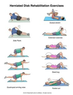 Herniated Disk Exercises