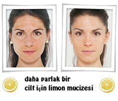 Daha taze ve parlayan bir cilt için limon maskeleri
