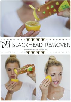 Get rid of blackheads using honey, lemon, and sugar and rubbing on problem areas. // Barefoot Blonde.
