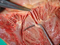 """Chordae tendineae (the """"heart strings"""") - tendons connecting the papillary muscles in the ventricular walls to the AV valves, which prevent the valves from being pushed into the atria during ventricular contraction."""