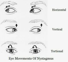 living with nystagmus | things to help little man | pinterest, Skeleton