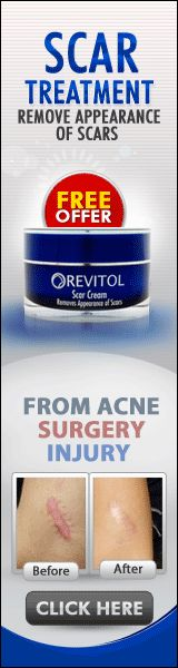 Revitol Scar Cream removes the appearance of Acne Scars, Burns, cuts, gashes and scars caused by surgery. We've worked hard to develop a blend of all-natural ingredients that fortify your skin with proteins and vitamins.