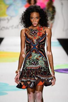 Winnie Harlow, a top model com vitiligo, rouba a cena na New York Fashion Week