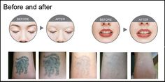 Multi-wavelength ND-YAG laser for tattoo removal & skin rejuvenation beauty machine