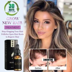 Anti Hair Loss Products Hair Care Essential Oils That Promote Fast Hair Growth of Hair Natural Health Extract Hair Restorer