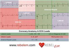 Coronary Anatomy and Related ECG Leads