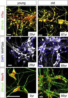 New technique enables researchers to grow old human brain cells for the first time.