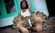 Dede Koswara a. Tree Man of Indonesia, suffering on epidermodysplasia verruciformis, which is an extremely rare autosomal recessive genetic hereditary skin disorder. Papillomavirus, Human Tree, Rare Disease, Bizarre, Crazy People, Strange People, Human Condition, Medical Conditions, Horror