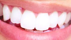 Receding gums are the first sign of gum disease which means taking good care of your gums is important. Here are some natural remedies for receding gums. Best Teeth Whitening Kit, Teeth Whitening Remedies, Baking Soda Lemon Juice, Beauty Tips For Skin, Diy Beauty, Beauty Tricks, Beauty Stuff, Beauty Secrets, Beauty Products