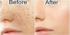 Every person has skin pores which become visible as you age. They really look bad and affect your self-esteem. For that reason, we will offer you some natural remedies which will shrink them. Below, y