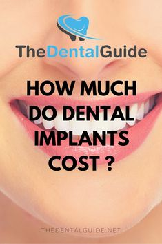 How Much Do Dental Implants Cost in the UK? - The Dental Guide Veneers Teeth Cost, Dental Veneers, Best Dental Implants, Teeth Implants, Dental Implant Cost, Dental Crown Cost, Invisalign, Teeth Whitening Cost, Dental Bonding