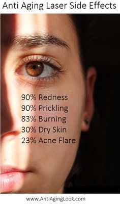 at home age defying laser treatments side effects
