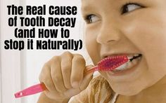 Ever wonder why some people seldom brush their teeth and have no cavities? Here's why, and how to stop tooth decay naturally. Toddler Tooth Decay, Baby Tooth Decay, Charcoal Teeth Whitening, Natural Teeth Whitening, Teeth Implants, Dental Implants, Dental Hygienist, Causes Of Tooth Decay, Tooth Extraction Healing