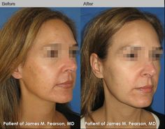 Hyperpigmentation Before and After All About hyperpigmentation treatment http://meladermpigmentreducingcomplex.org/get-rid-of-hyperpigmentation/