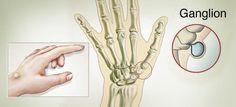 Ganglions lymphatiques : Comment soigner les ganglions, remèdes naturels pour réduire les boules aux poignets et aux chevilles.