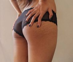 How to Get Rid of Cellulite on Thighs and Bum Naturally Cellulite, Chris Brown, Beauty Secrets, Beauty Hacks, Beauty Tips, Raw Beauty, Natural Beauty, Stretch Mark Removal, How To Remove Stretch Marks