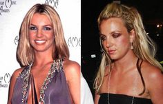 Celebs Before and After Drugs