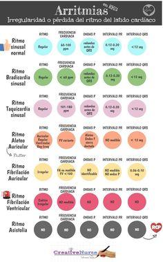 Arritmias en electrocardiograma infografia
