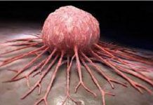 We all know that cancer is a dangerous disease. A lot of us have lost our friends or family because of cancer. Leonard Coldwell says that he has found a cure for cancer. Health And Beauty, Health And Wellness, Health Tips, Natural Cures, Natural Healing, Vitamine B17, Health Remedies, Home Remedies, Diagnose Krebs
