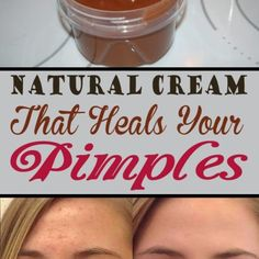 Natural Cream That Heals Your Pimples