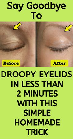 Learn how to get rid of droopy eyelids in less than 2 minutes with this simple homemade trick that not many people know about. There are many home remedies that can help you tighten your skin better than botox that you can make at home.- Skin Care Tips Healthy Tips, How To Stay Healthy, Healthy Food, Healthy Beauty, Healthy Recipes, Healthy Meals, Healthy Detox, Beauty Skin, Health And Beauty