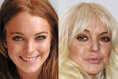 With all of the chaos in Lindsay Lohan's life, she's turned to more plastic surgery. The before and after photos show she's had Botox injections, facial fillers, & lip implants. Blac Chyna Plastic Surgery, Celebrity Plastic Surgery, Bad Plastic Surgeries, Plastic Surgery Gone Wrong, Lindsay Lohan, Lip Art, Lipstick Art, Lipstick Dupes, Lip Implants