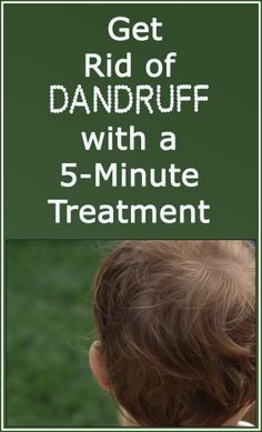 Natural Remedies For Dandruff Home Remedies For Dandruff, Natural Remedies, Hair Treatments, Getting Rid Of Dandruff, Mild Shampoo, Coconut Oil Uses, Homemade Beauty Products, Free Hair, Beleza