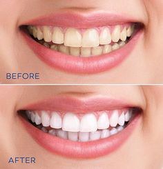 """Statt Zahnpasta: Dieses Hausmittel macht eure Zähne weißer This home remedy makes your teeth more white – """"White teeth without expensive beauty products: You can easily make this woman yourself! Home Teeth Whitening Kit, Teeth Whitening Remedies, Natural Teeth Whitening, Instant Teeth Whitening, Teeth Whitening Diy, Beauty Care, Diy Beauty, Beauty Hacks, Beauty Skin"""