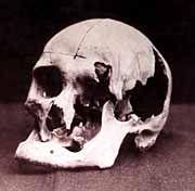 Lizzie Borden's father's skull
