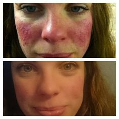 Drastic diet change: One month in. This was me 2 months ago. My name is Heg. I am a musician and I have suffered from rosacea for two and a half year Rosacea Makeup, Rosacea Remedies, Skin Care Remedies, How To Treat Rosacea, Acne Skin, Skin Care Tips, Makeup Tips, Ideas, Natural Remedies