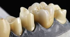 Advantage with function - Create additional advantages using the CAD software https://blog.ceramill.com/posts/7-advantage-with-function-create-additional-advantages-using-cad-software